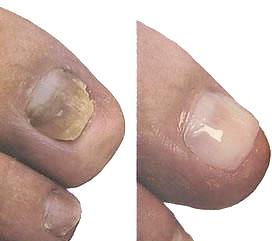 nagelreparatie.jpg